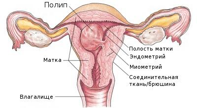 Железисто-фиброзный полип эндометрия