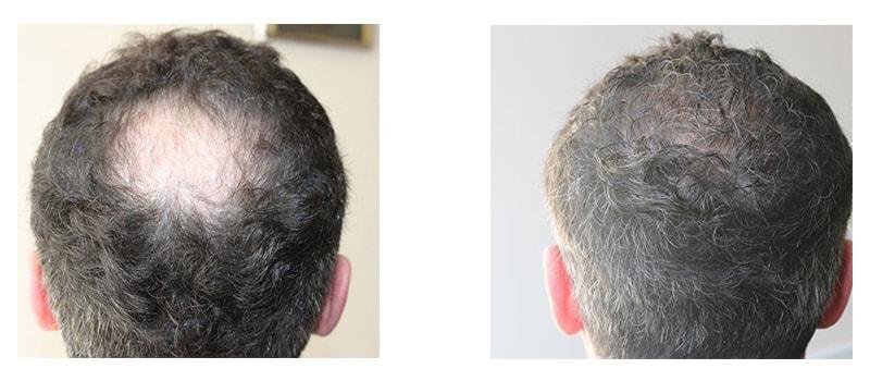 Лечение алопеции у мужчин в ОН КЛИНИК: фото до и после
