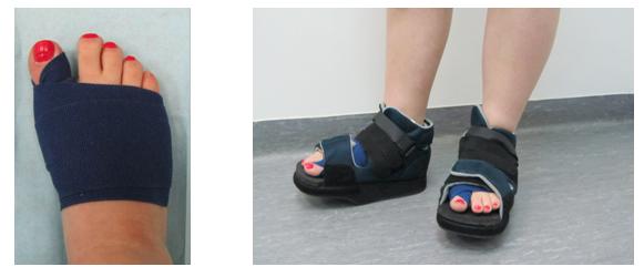Лечение патологий стопы - Орто-С