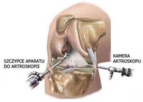 Где можно сделать операцию коленного сустава в москве передовые средства для лечения суставов